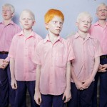 Categoria portret regizat: Brent Stirton - Copii albinoși orbi indieni